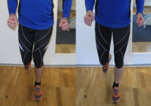 Vanlig orsak till löparskador - Gravity Pattern