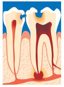 Lumsk tandsygdom rammer op til halvdelen af voksne danskere