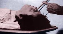 HJÄRNSKADOR – PSYKIATRINS MIRAKELKUR