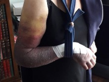 Appeal for information after elderly woman's arm broken during robbery