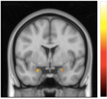 Hjärnan formas om efter KBT