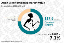 Asian Breast Implants Market Projected to Reach US$ 287.0 Mn by 2025 – Persistence Market Research