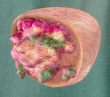 Hva skjer egentlig i en kreftsvulst?