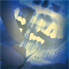 Kliniska resultat - implantat med bisfosfonat sitter bättre fast i ben
