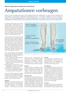 Amputationen vorbeugen: Klinische Diagnostik des diabetischen Fußsyndroms