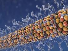AbbVie und Voyager kooperieren in der Alzheimer-Forschung