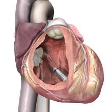 Nye studier bekræfter fordele ved verdens mindste pacemaker