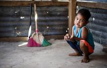 751 barn opererade på en vecka i Filippinerna
