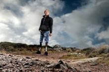 Almi Invest satsar på en unik svensk fotprotes