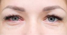 Varför får man svullna ögon?