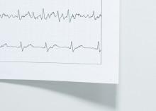Sydänliiton hallitus: Kardiologeja tarvitaan enemmän