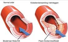 Studie visar att Repatha minskar plackbildning vid kranskärlssjukdom