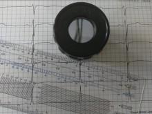 EKG-förändringar kan avslöja hjärtkärlsjukdom hos personer med KOL