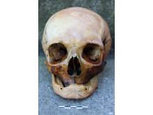 Holmens Kirke - kranie uden tænder