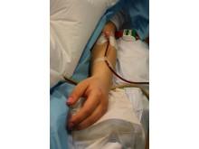 Skörd av blodstamceller inför transplantation