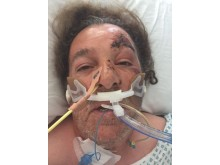 Victim in hospital after the attack