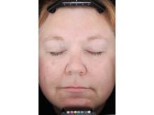 Patient 30 minuter efter behandling med Mirvaso (brimonidin)