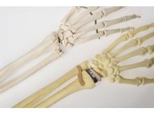 Handledsskelett/handledsprotes
