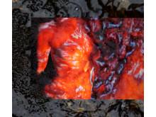 Mossa och rödkropp - pressbild från utställningen Body Landscape