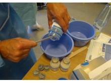 Preparering av ananasgel på brännskadecentrum, Akademiska sjukhuset