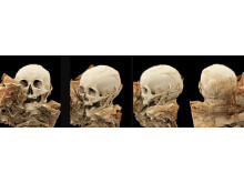 Scanningsbilleder af mumie fra Mongoliet. Mumien kan ses i særudstillingen På Djengis Khans stepper - Mongoliets nomader på Moesgaard