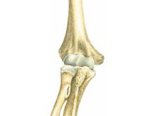 Armbågsled drabbad av reumatoid artrit