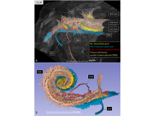 Cochlea blood vessel