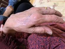 Victim's bruised hand