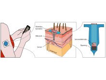 KTH-forskarnas nya teknik mäter sockernivån direkt i huden, och där finns inga nervreceptorer som registrerar smärta.