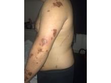 Injuries to victim's body