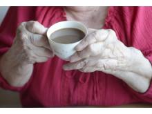 Ungefär 60 000-80 000 personer i Sverige har reumatoid artrit
