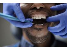 Mun och tänder