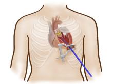 Ny minimalinvasiv metod för hjärtklaffbyte