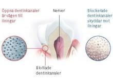 Iningar i tänderna och dentilkanaler, nyhetsgrafik