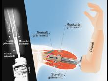 Röntgenbild och illustration av den tankestyrda protesen med känsel