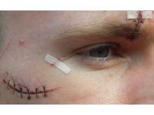 The victim's injuries