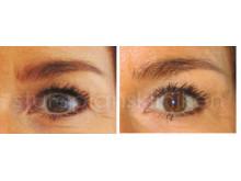 Lyft av ögonbryn med Restylane: Före och Efter | Stureplanskliniken