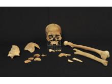 Skeletal fragments from the Hummervikholmen site