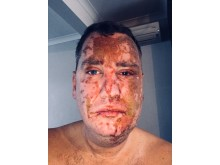 Victim after he was attacked with noxious substance