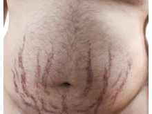 Symtom vid Cushings sjukdom – hudbristningar