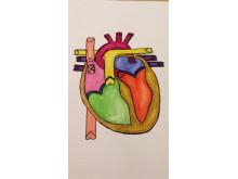 datortomografi av hjärtats kranskärl