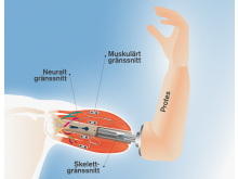 Illustration av den tankestyrda protesen med känsel