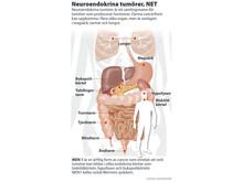 Neuroendokrina tumörer