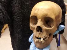 Menneskelige levninger finnes i samlingene til Nasjonalt medisinsk museum