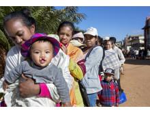 På Madagaskar väntar många barn på en operation för sin läpp-, käk- eller gomspalt.