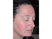 Soolantra (ivermektin) - efter behandling