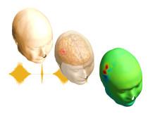 """Illustration över skillnader i spänningsfördelning vid skada orsakad av stroke, vid stimulans med elektriska impulser. Detta är grunden för metoden som forskarna kallar för """"Electrical Bioimpedance Cerebral Monitoring""""."""