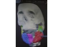 Kranium i 3D