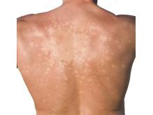 Symtom vid Cushings sjukdom – svampinfektion i huden