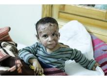 Ett barn med en brännskada på ett sjukhus i norra Syrien.